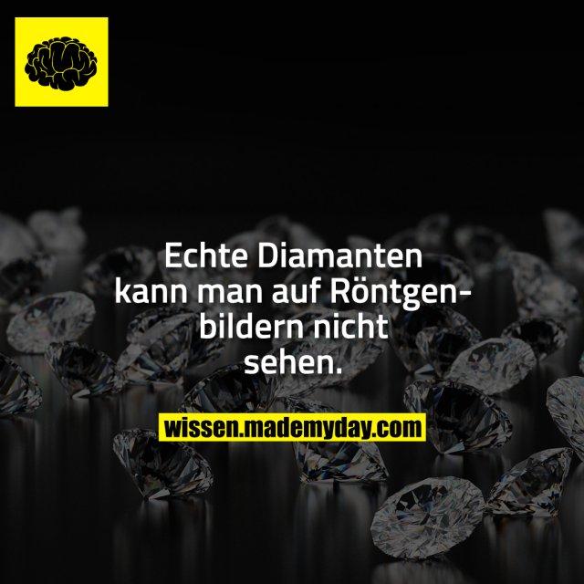 Echte Diamanten kann man auf Röntgenbildern nicht sehen.